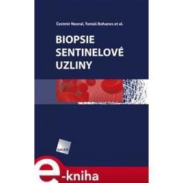 Biopsie sentinelové uzliny - Čestmír Neoral, Tomáš Bohanec