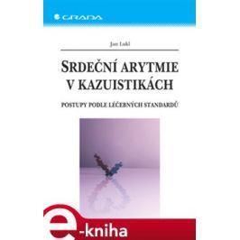 Srdeční arytmie v kazuistikách - Jan Lukl
