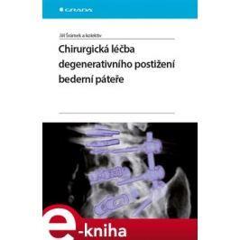 Chirurgická léčba degenerativního postižení bederní páteře - Jiří Šrámek, kolektiv autorů